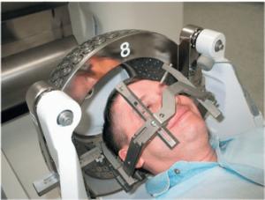 При трепанации черепа можно оформить инвалидность
